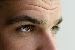 Before And After Images -  Blepharoplasty Men