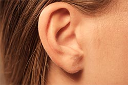Before And After Images -  Ear Lobe Repair