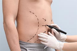 Before And After Images -  Liposuction