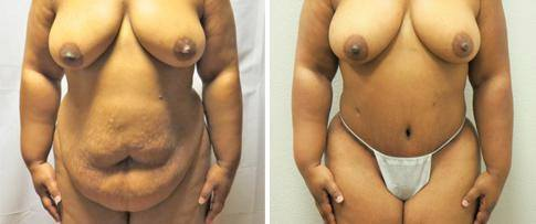 Tummy Tuck Procedure BA image 6