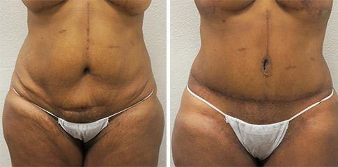 Tummy Tuck Procedure BA image 5
