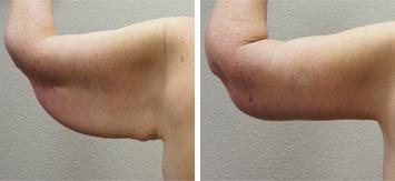 Arm Lift - Thumb 2