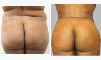 Brazilian Butt Lift - Thumb 2
