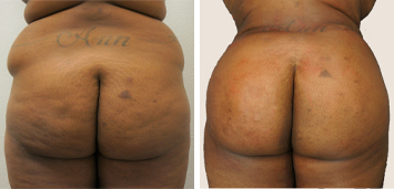 Brazilian Butt Lift Before And After Results