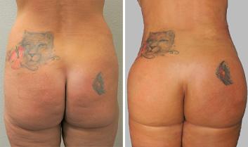 Brazilian Butt Lift - Thumb 3