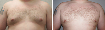 Gynecomastia Men - Thumb 1