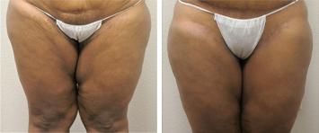 Liposuction - Thumb 3