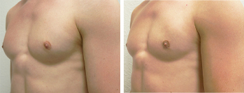 Gynecomastia Men - Thumb 3