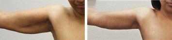 Arm Lift - Thumb 1