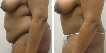 Tummy Tuck - Thumb 1