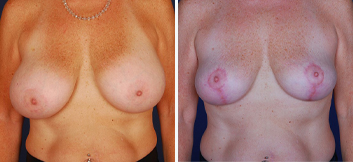 Breast Implant Removal - Thumb 1