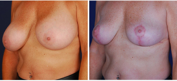Breast Implant Removal - Thumb 2