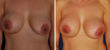 Breast Implant Removal - Thumb 3