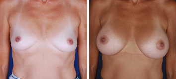 Breast Augmentation - Thumb 3