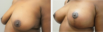 Breast Augmentation with Lift - Thumb 2