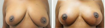 Breast Augmentation with Lift - Thumb 3