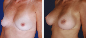 Breast Augmentation - Thumb 2