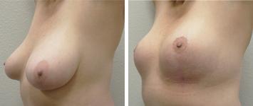 Breast Lift - Thumb 1