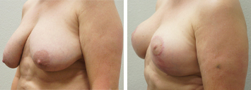 Breast Lift - Thumb 2