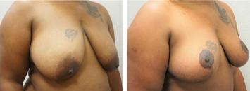 Breast Lift - Thumb 2