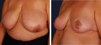 Breast Reduction - Thumb 2