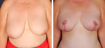 Breast Reduction - Thumb 3