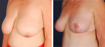 Breast Reduction - Thumb 4