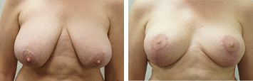 Breast Reduction - Thumb 4