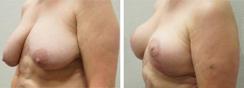 Breast Reduction - Thumb 3