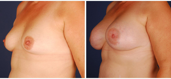 Breast Augmentation - Thumb 1