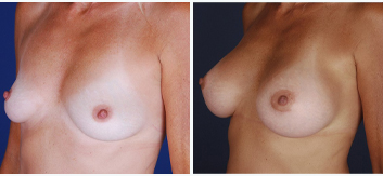 Breast Augmentation with Lift - Thumb 12