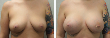 Breast Augmentation/TUBA Before And After Results