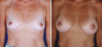 Breast Augmentation with Lift - Thumb 11