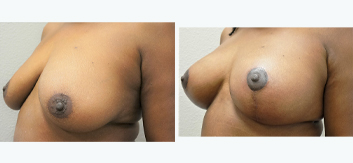 Breast Augmentation with Lift - Thumb 10