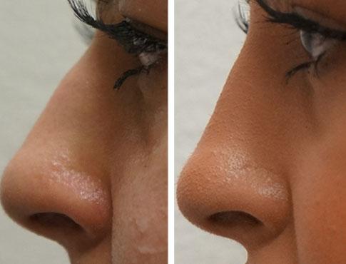 Liquid Rhinoplasty (Non surgical nose job)