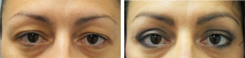 Blepharoplasty Before And After Results