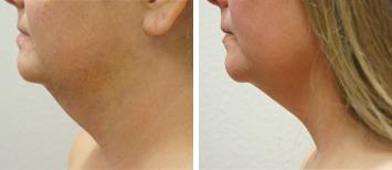 Submental Liposuction - Thumb 2