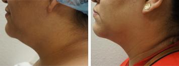 Submental Liposuction - Thumb 1