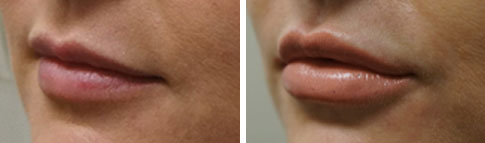 Treatment with Juvederm Lip Filler