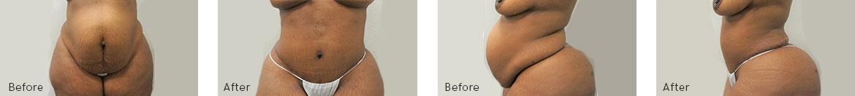 Tummy Tuck Procedure BA image 3