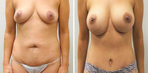 Mommy Make-Over (Tummy tuck with silicone breast implants)