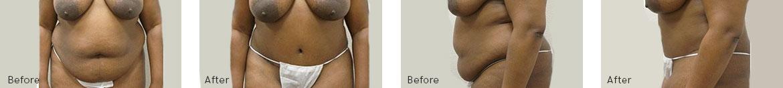 Tummy Tuck Procedure BA image 4