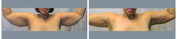 Brachioplasty Before After 04 - Dr. Patrick Obasi - Plano TX and Desoto TX
