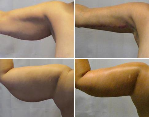 Brachioplasty Before After 02 - Dr. Patrick Obasi - Plano TX and Desoto TX