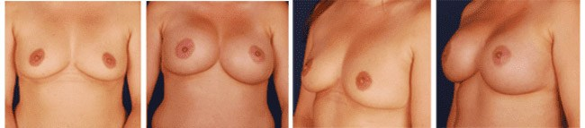Breast Augmentation Before After 01