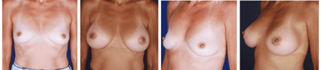 Breast Augmentation Before After 02