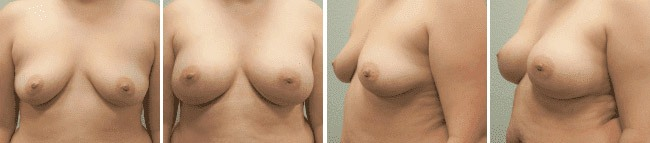 Breast Augmentation Before After 06 - Dr. Patrick Obasi - Plano TX and Desoto TX