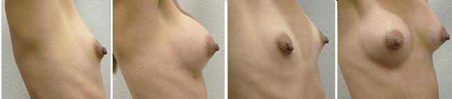 Breast Augmentation Before After 05 - Dr. Patrick Obasi - Plano TX and Desoto TX