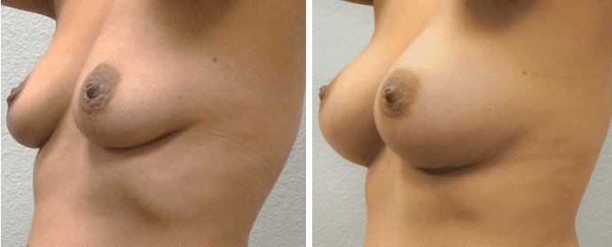 Breast Augmentation Before After 04 - Dr. Patrick Obasi - Plano TX and Desoto TX