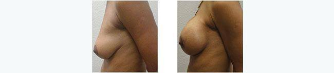 Breast Augmentation Before After 03 - Dr. Patrick Obasi - Plano TX and Desoto TX
